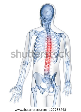 3d rendered illustration of a painful back - stock photo