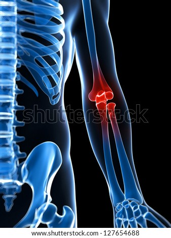 3d rendered illustration of a painful elbow - stock photo