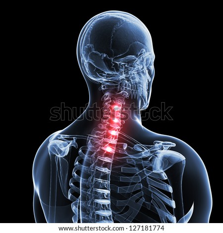 3d rendered illustration of a painful neck - stock photo