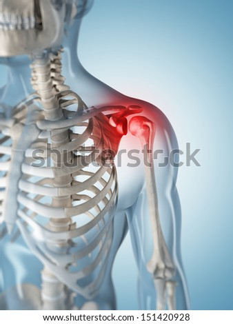 3d rendered illustration of a painful shoulder - stock photo