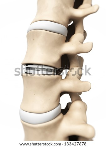 3d rendered illustration of an artificial diss - stock photo