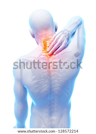 3d rendered illustration - painful neck - stock photo