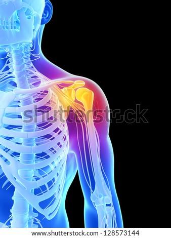 3d rendered illustration - painful shoulder - stock photo