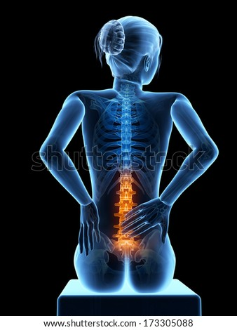 3d rendered medical illustration - Acute pain in a woman���´s back. - stock photo