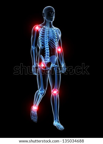 3d rendered medical illustration - painful joints - stock photo