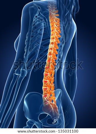 3d rendered medical illustration - painful spine - stock photo