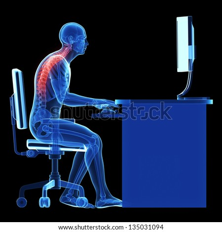 3d rendered medical illustration - wrong sitting posture - stock photo