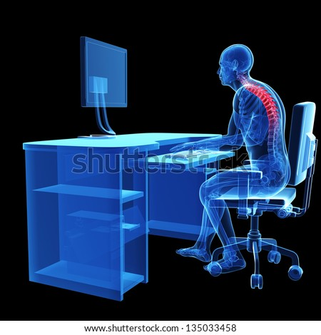 3d rendered medical illustration - wrong sitting posture - stock photo