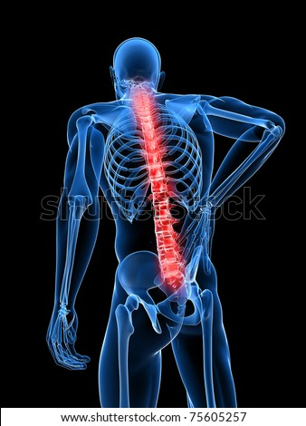 3d rendered medical x-ray illustration -  male backache - stock photo