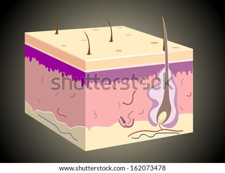 3D skin oblique with cut away epidermis - stock photo
