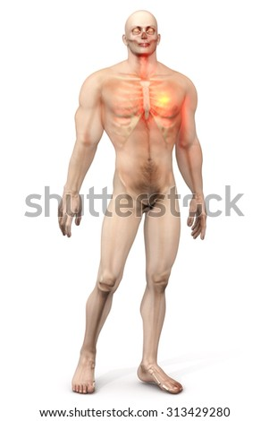 3D visualization symbolizing a heart attack in a male Chest.