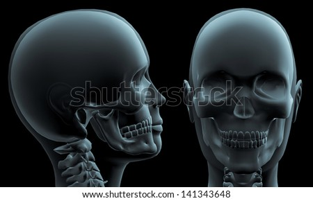 3D X-ray of human head