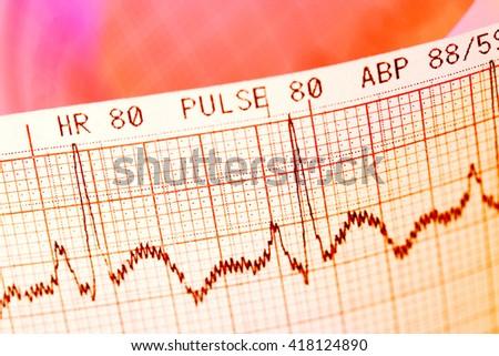 Electrocardiogram- ECG print - stock photo