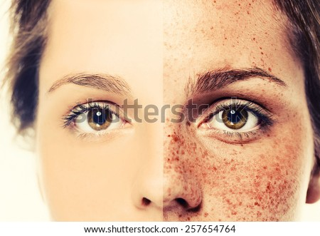 Eyes Woman freckle happy young beautiful studio portrait with healthy skin half - stock photo