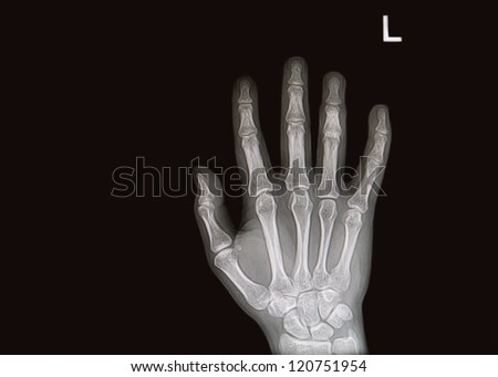 hand and finger  x-rays image - stock photo
