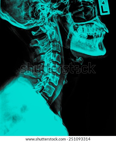 Image of Spinal Column Neck pain and Skull Head Stress - stock photo