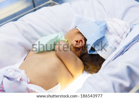 """Neonatal jaundice""  Newborn was therapy by ""Phototherapy"" (Blue light neon at upper and lower side of newborn)"