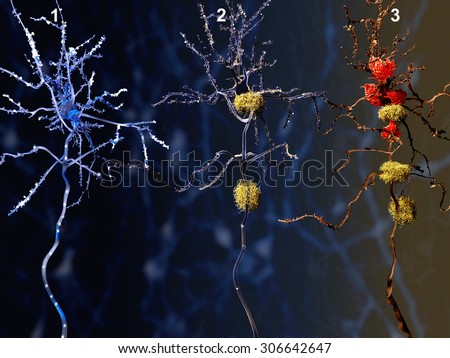 3 phases of the Alzheimer disease. 1. Healthy neuron. 2. Neuron with amyloid plaques (yellow). 3. Dead neuron being digested by microglia cells (red)