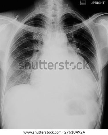 """Pulmonary Tuberculosis"" Film chest x-ray  - stock photo"