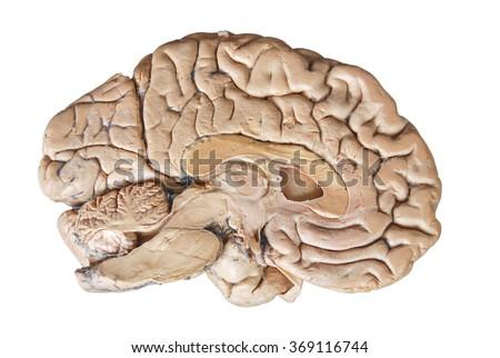 Real human half brain anatomy isolated on white background - stock photo