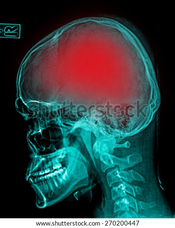 """Stroke"" (cerebrovascular accident). Film x-ray skull lateral with stroke"