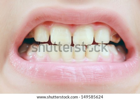 teeth caries
