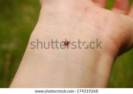 tick on skin, Ixodes scapularis,  - stock photo