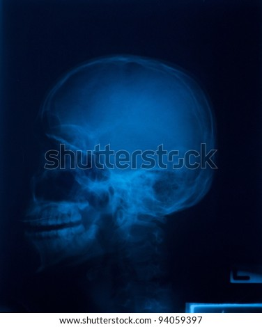 X-ray film of  Skull lateral