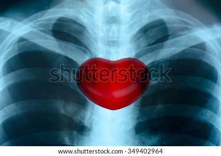X-Ray Image Close up Of Human Chest With Medical Structure of the Heart - stock photo