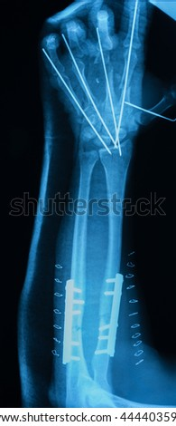 X-ray image of forearm include hand, AP view, after reduction and internal fixation  - stock photo