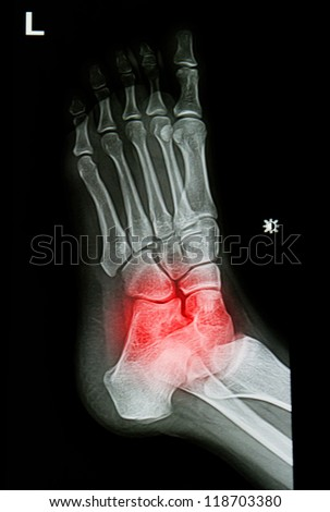 x-rays image of  the painful or injury ankle and foot - stock photo