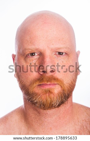 A bald man with a red beard and a serious expression on his face.
