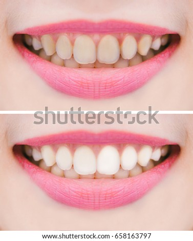A beautiful smile and teeth whitening treatment before and after,selective focus