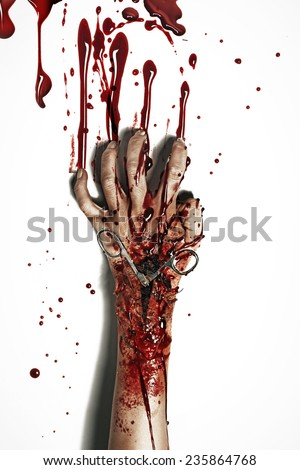 a bleeding hand - stock photo