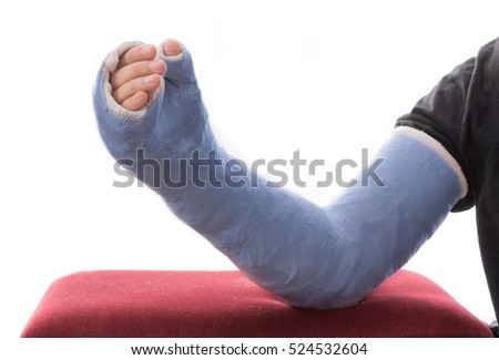 Broken Finger Stock Images Royalty Free Images Amp Vectors