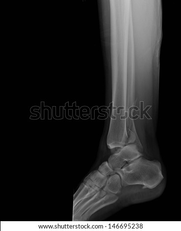 A broken ankle with side view on plain radiograph. - stock photo