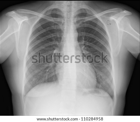 A chest x-ray image for a medical diagnosis. - stock photo