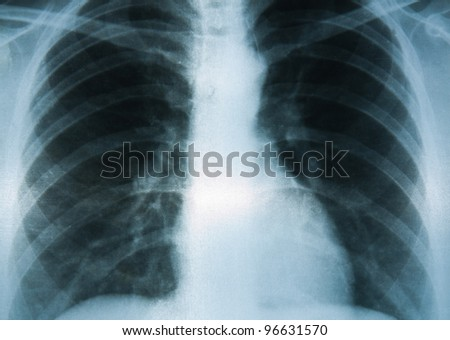 A Chest X-ray image, medical consultation. - stock photo