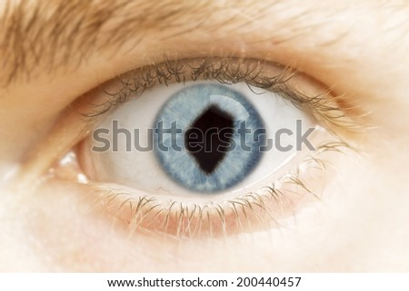 A close-up of an eye with the pupil in the shape of Swaziland.(series)