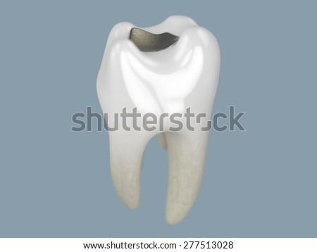 A close up of rendering of a tooth with a filling on a grey background - stock photo