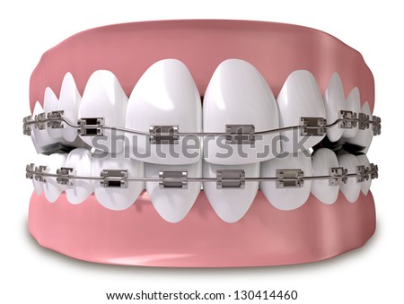 A closed set of human teeth with metal braces fitted set in gums on an isolated background - stock photo