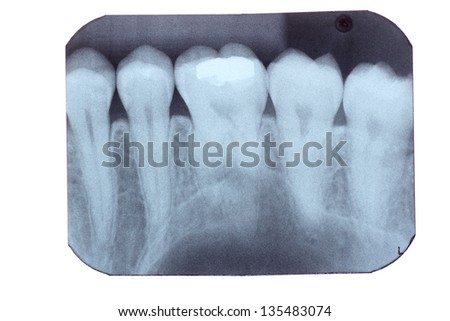 a dental x-ray film isolated on white - stock photo
