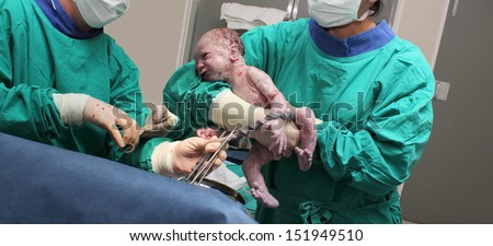 A doctor holds a new born baby whilst another doctor cuts the Umbilical cord. - stock photo