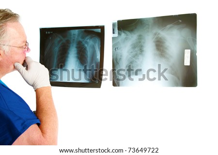 a doctor or surgeon examins his patients xrays isolated on white with room for your text