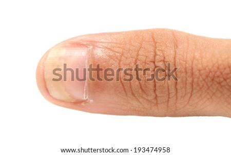 A fingernail fungus isolated on white background - stock photo