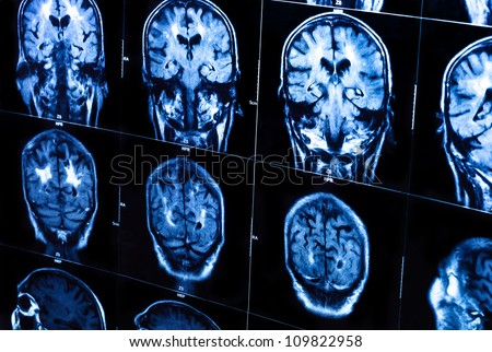 A group of CAT scans of the human brain closeup - stock photo