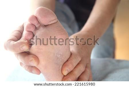 Sore athletes symptoms foot thumbs Dry