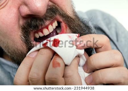 a man is suffering about gums bleeding - stock photo