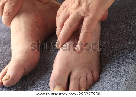 A man's hands on his feet, one of which has both toenail fungus and the dry, peeling skin of athletes foot - stock photo