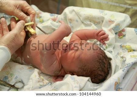 A newborn African-American girl getting her umbilical cord clamped. - stock photo